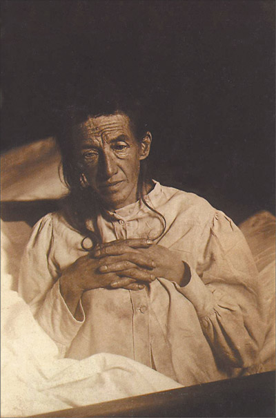 "Alois Alzheimer's patient Auguste Deter in 1902. Hers was the first described case of what became known as Alzheimer's disease. ""Auguste D aus Marktbreit"" by Unknown - Unknown. Licensed under Public Domain via Wikimedia"